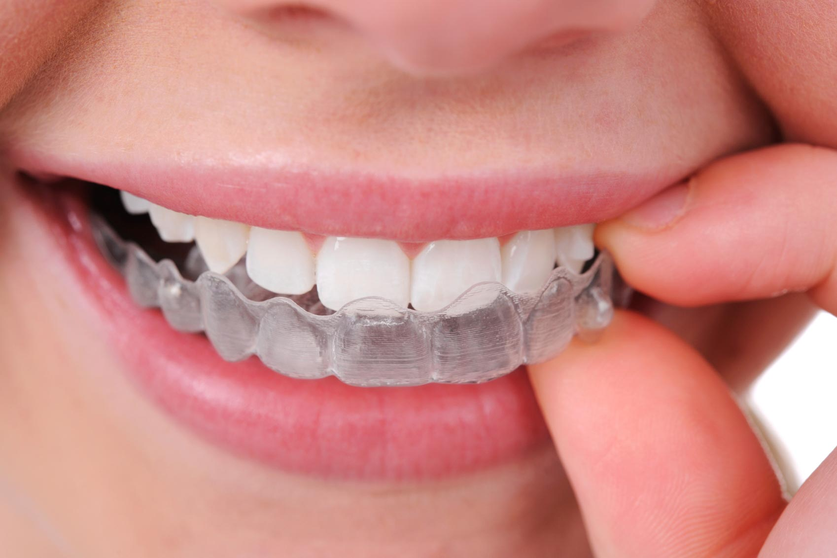 virtually invisible braces