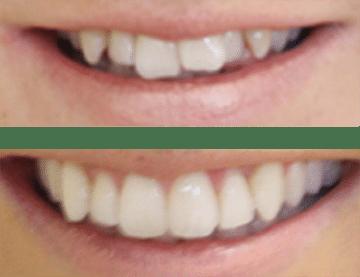 mikala straighter teeth